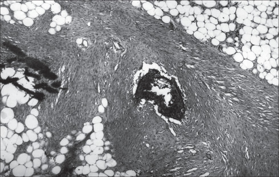 Figure 2: Photomicrograph showing islands of mature fat tissue, bone formation, blood vessels and bundles of spindle cells (H/E, x120)