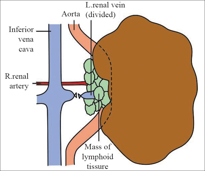 Figure 2: Diagram showing the aortic displacement and the mistaken ligation of the right renal artery