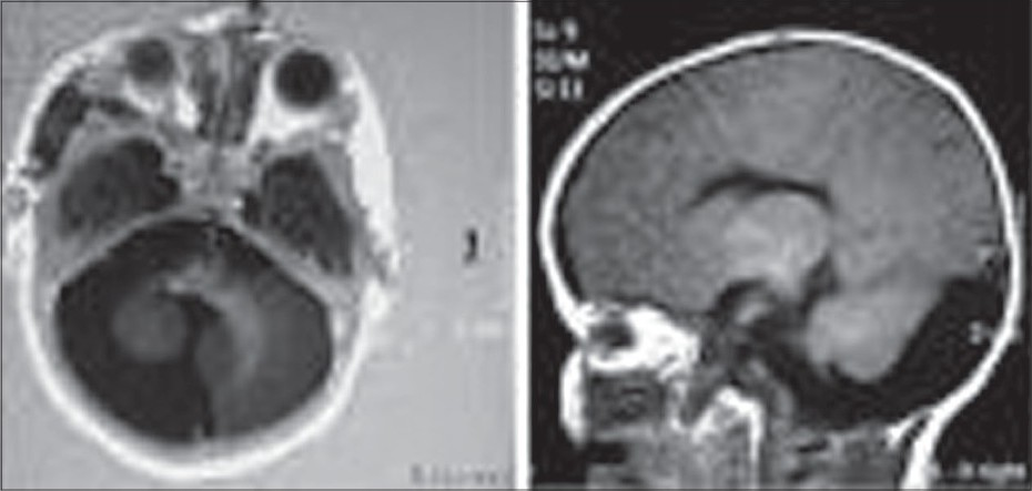 Figure 2 :(T1 Weighted Images of MRI Brain): Dandy Walker Cyst Associated with Hypoplastic Vermis and Right Cerebellar Hemisphere