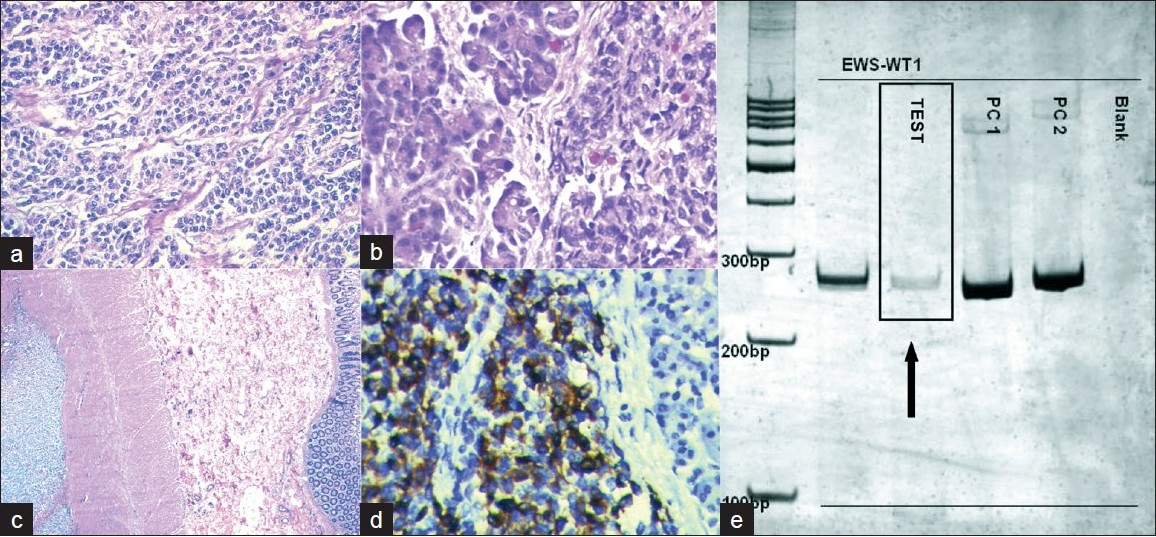 Figure 3: a) A malignant small round cell tumor infiltrating the b) pancreas and c) the wall of the colon. d) Strong cytoplasmic positivity for antibody to desmin on immunohistochemistry. e) EWS-WT1 fusion transcript as demonstrated by RT-PCR
