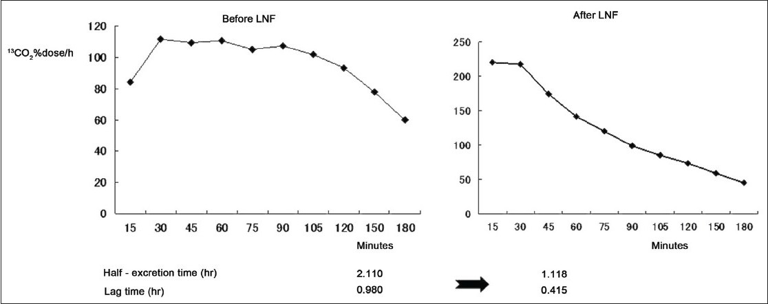 Figure 3: The fi ndings of pre- and post-LNF 13C-ABT in patient 3 with NI. The preoperative t1/2ex and t lag were 2.110 and 0.980 hours, respectively. The postoperative t1/2ex and t lag were 1.118 and 0.415 hours, respectively.