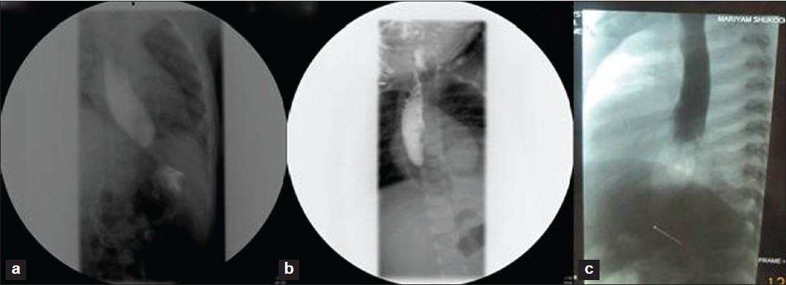 Figure 2: Barium swallow showing distal esophageal stenosis in case 1 (a), case 2 (b) and case 3 (c)