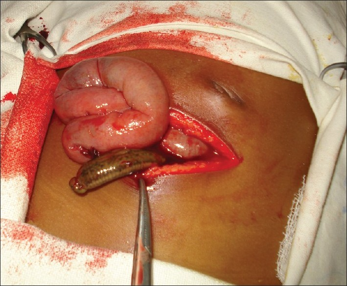 Figure 1: Leech popping out from the pelvic cavity