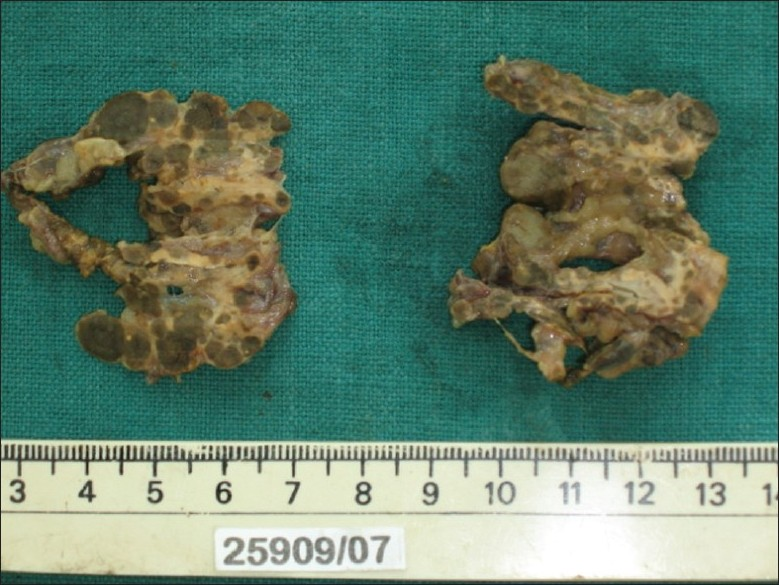 Figure 1: Cut section of the right and left adrenals with multiple small, pigmented nodules