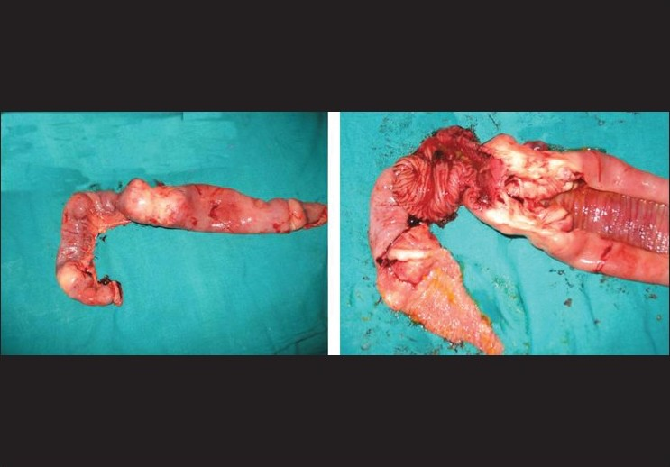Figure 1: The left picture shows the resected jejunum with metastases at two sites and the right picture shows cut open specimen