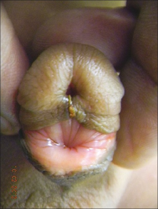 Figure 1: Appearance of phallus after circumcision