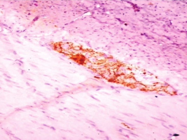 Figure 2: Calretinin staining of ganglion cells (H and E, 40×)