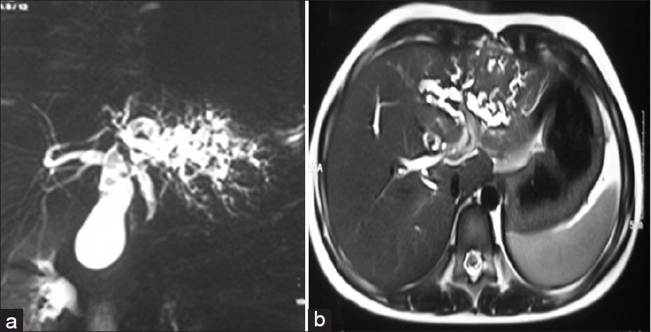 Figure 1: Magnetic resonance cholangiopancreatography images (a) axial and (b) coronal sections showing atrophy of left lobe of liver, cystic dilatation of left lobar duct and intrahepatic biliary radicles, prominent right hepatic duct, multiple gall bladder calculi, dilatation of common bile duct (CBD) (1 cm) with no evidence of calculus, and smooth narrowing of CBD in its distal part