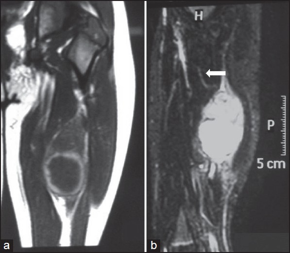 Figure 1: MRI (A) and Contrast enhanced Computerized Tomography (CT) CECT (B) shows a well-defined oval lesion in close proximity to the sciatic nerve with a feeder vessel (arrow) from profunda femoris vessel and enhancement of the lesion with contrast