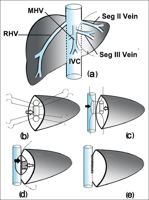 Figure 2: Illustration (a) Type 3 LHV: Note segment III vein draining into MHV and segment II vein draining into IVC. Resection plane for the left lateral segment graft is marked with dotted line (b) A quadrangular venous patch (open arrow) has been used to unite the ostia of segment II and III veins. Orientation sutures are taken on venous patch corners and graft venous sides (c) A venotomy is made on the anteromedial aspect of IVC and orientation sutures are taken for anastomosis with neo LHV (open arrow) (d) Shows posterior layer of anastomosis (black arrow) (e) Completed wide neo LHV-IVC anastomosis