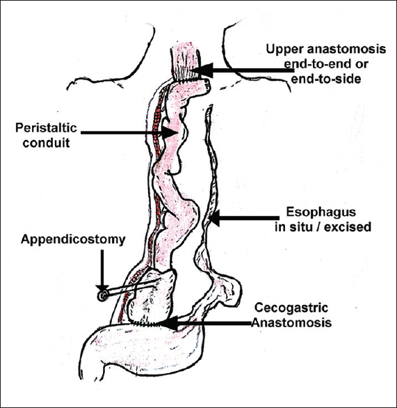 Figure 3: Line diagram showing ileocolic segment replacement of esophagus after anastomosis