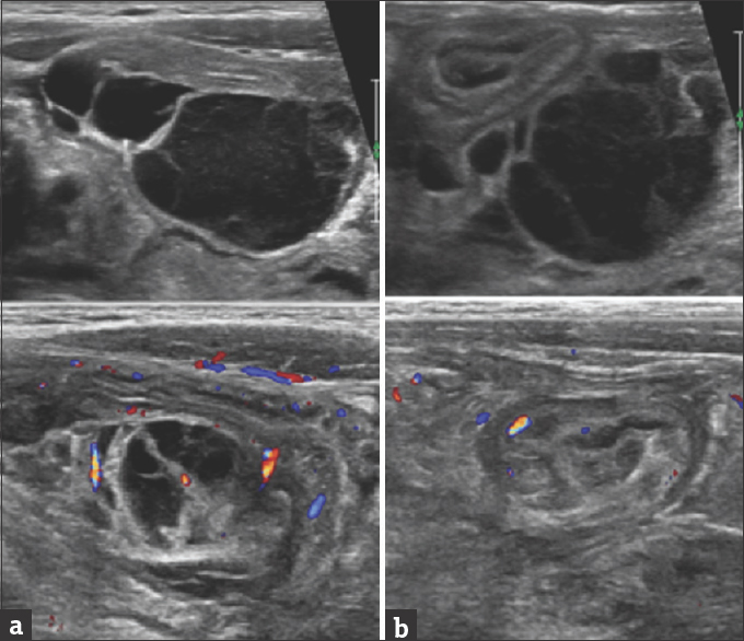 Figure 1: Abdominal ultrasound showing multicystic lesion (a) right iliac fossa (b) pelvis