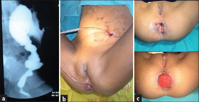 Figure 4: (a) Barium study showing stricture in the region of anorectum and (b and c) clinical pictures of the patient (12-year-old girl) presenting with fecal fistula, patulous anal opening, and loss of anal sphincter control