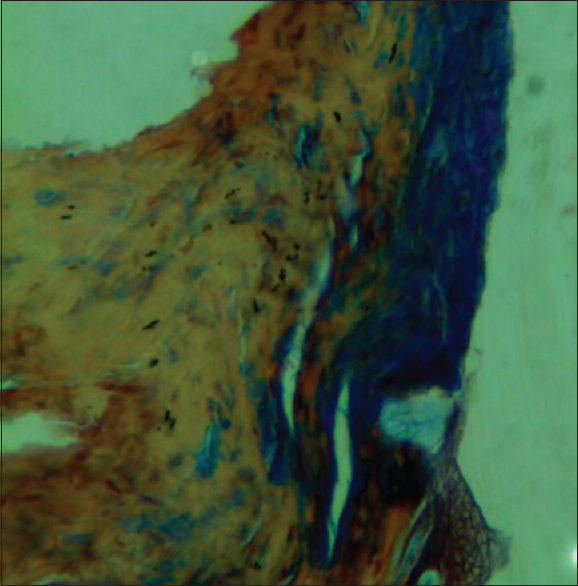 Figure 2: The use of Masson's trichrome shows collagen fibers in blue
