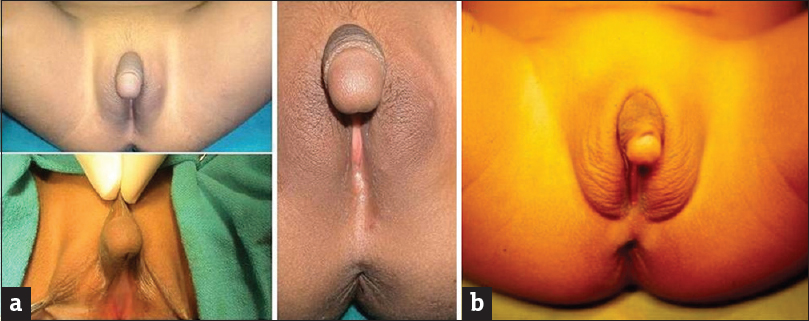 Figure 1: (a) Congenital adrenal hyperplasia: 12-year-old girl presented with virilization, clitoromegaly, hyper-pigmentation and excessive pubic hair; (b) Mixed gonadal dysgenesis: Cylindrical and small phallus, perineal hypospadias, deficient prepuce, penoscrotal transposition and undescended gonads (original)