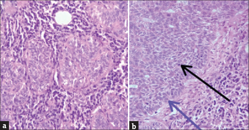 Figure 2: Histopathology slides. (a) Nests of basal cell with peripheral palisading in the stroma and plasma infiltration. (b) Black arrow shows mitosis and blue arrow shows peripheral palisading