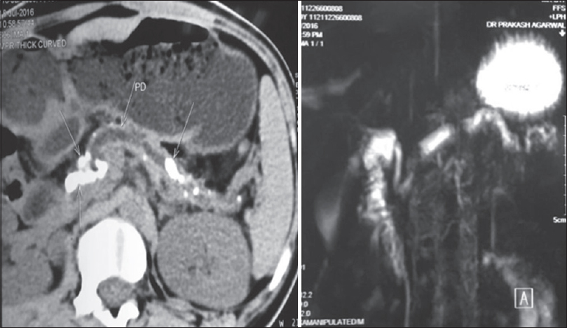 Figure 1: Contrast-enhanced computerized tomography (image on the left) and magnetic resonance cholangiopancreatography image showing dilated pancreatic duct with multiple intraductal calculi