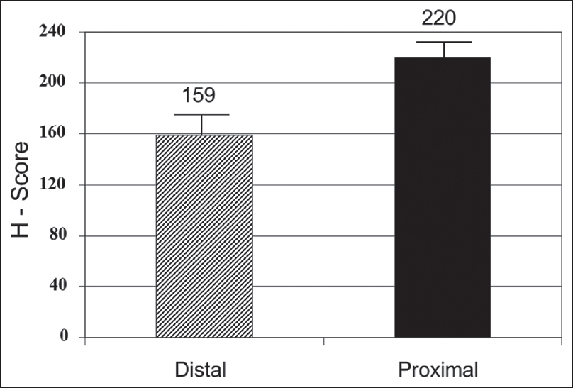 Figure 3: Striped bar represents distal and black bar proximal hypospadias patients. Y-axis represents mean H score. Mean H score (androgen receptor expression) was significantly higher in proximal hypospadias