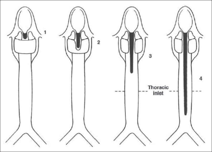 Figure 2: Classification of laryngo-tracheo-esophageal cleft by Benjamin and Inglis (1989)